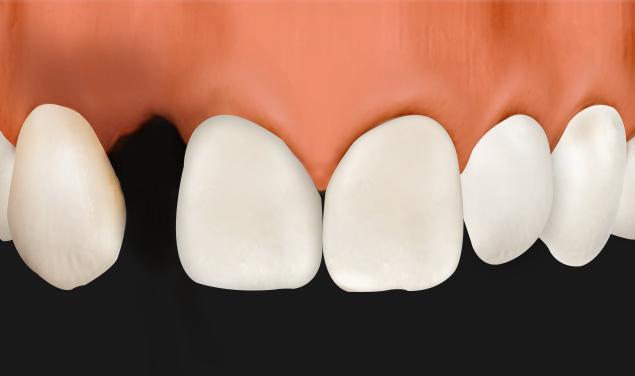 https://cdn.minishteeth.com/wp-content/uploads/2021/08/18071449/types-bridge-loss-of-teeth-and-gums.jpg