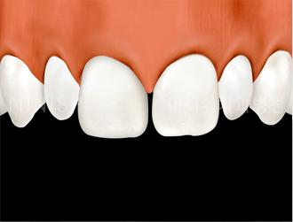 https://cdn.minishteeth.com/wp-content/uploads/2021/08/27105513/program-simple-minish-small-teeth.png