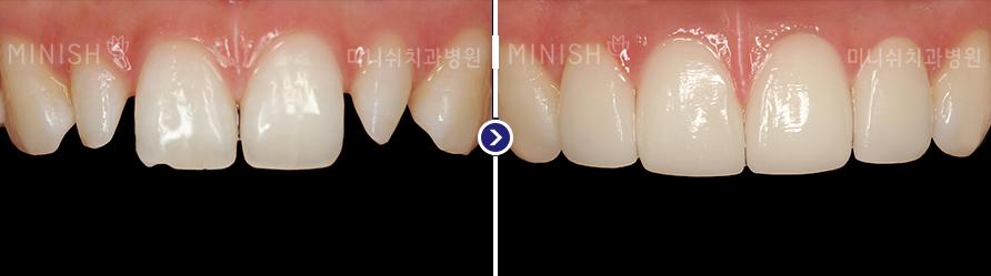 https://cdn.minishteeth.com/wp-content/uploads/2021/08/27110826/program-simple-minish-bna-small-teeth.png
