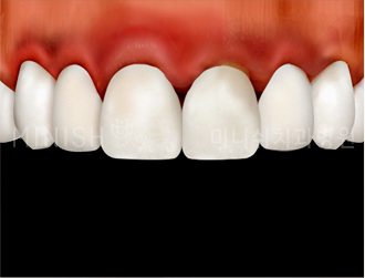 https://cdn.minishteeth.com/wp-content/uploads/2021/08/27113313/program-minish-remedy-gum-inflammation.png