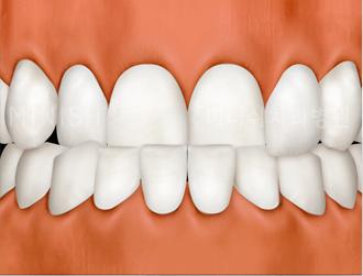 https://cdn.minishteeth.com/wp-content/uploads/2021/08/27115147/program-minish-hybrid-tooth-malocclusion.png