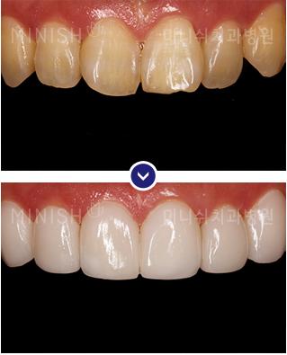 https://cdn.minishteeth.com/wp-content/uploads/2021/08/27121035/minish-harmony-teeth.jpg