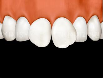 https://cdn.minishteeth.com/wp-content/uploads/2021/08/27121346/program-minish-harmony-butterfly-teeth.png