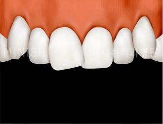 https://cdn.minishteeth.com/wp-content/uploads/2021/08/27121348/program-minish-harmony-irregular-tooth-arrangement.png