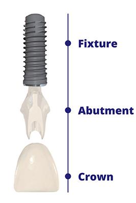 https://cdn.minishteeth.com/wp-content/uploads/2021/08/29075748/procedures-implants-schematic-1.jpg