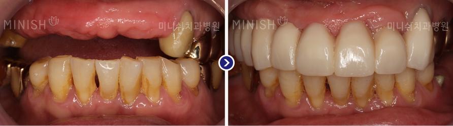 https://cdn.minishteeth.com/wp-content/uploads/2021/08/29083952/implant-mouth-slide-04.jpg