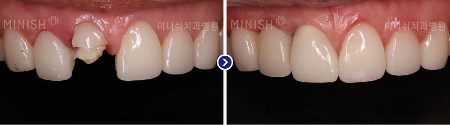 https://cdn.minishteeth.com/wp-content/uploads/2021/08/29083955/implant-mouth-slide-06.jpg