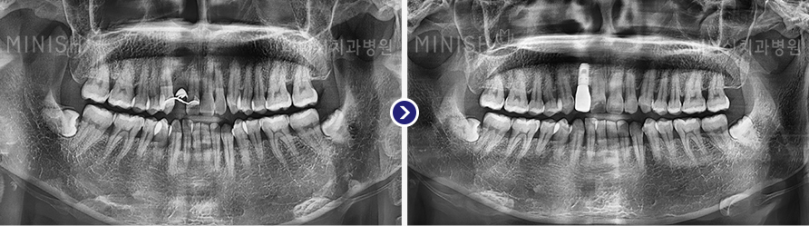 https://cdn.minishteeth.com/wp-content/uploads/2021/08/29084000/implant-panorama-slide-03.jpg