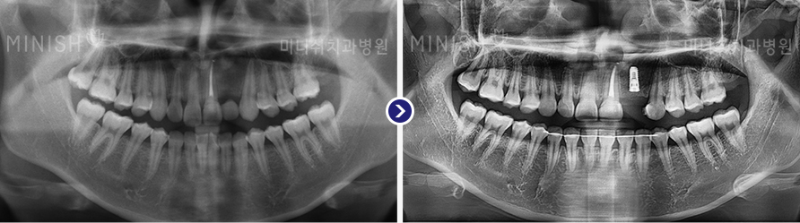 https://cdn.minishteeth.com/wp-content/uploads/2021/08/29084001/implant-panorama-slide-04.jpg