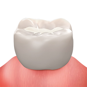 https://cdn.minishteeth.com/wp-content/uploads/2021/08/29153604/procedures-cavity-treatment-resin.jpg