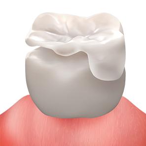 https://cdn.minishteeth.com/wp-content/uploads/2021/08/29153605/procedures-cavity-treatment-minish.jpg