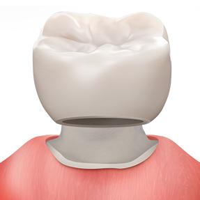 https://cdn.minishteeth.com/wp-content/uploads/2021/08/29153606/procedures-cavity-treatment-crown.jpg