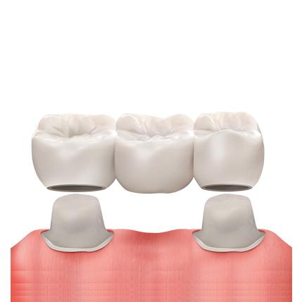 https://cdn.minishteeth.com/wp-content/uploads/2021/08/29154222/procedures-cavity-treatment-bridge-1.jpg