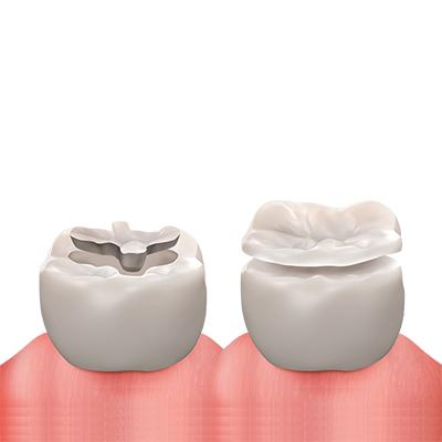 https://cdn.minishteeth.com/wp-content/uploads/2021/08/29154223/procedures-cavity-treatment-inlay-onlay-1.jpg