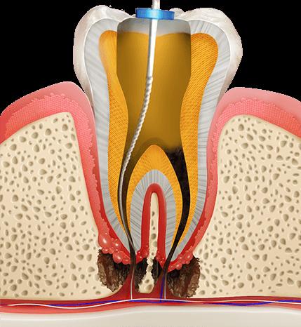 https://cdn.minishteeth.com/wp-content/uploads/2021/08/30003936/procedures-cavities-root-canal-2.png