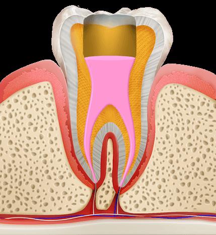 https://cdn.minishteeth.com/wp-content/uploads/2021/08/30003941/procedures-cavities-root-canal-4.png