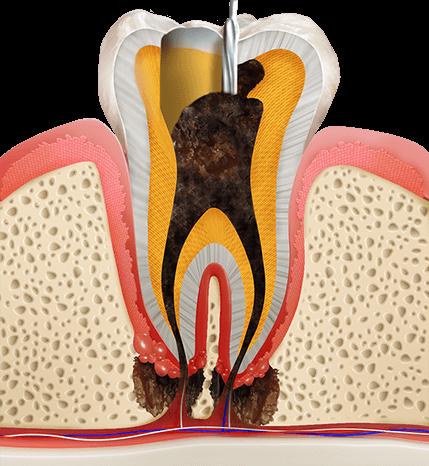 https://cdn.minishteeth.com/wp-content/uploads/2021/08/30003943/procedures-cavities-root-canal-1.png