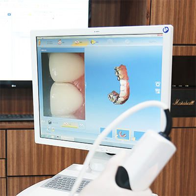 https://cdn.minishteeth.com/wp-content/uploads/2021/08/30010108/procedures-cavities-one-day-5.jpg
