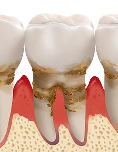 https://cdn.minishteeth.com/wp-content/uploads/2021/08/30022452/periodontal04_img04.jpg