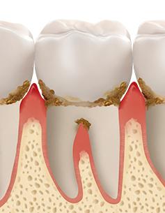 https://cdn.minishteeth.com/wp-content/uploads/2021/08/30022453/periodontal04_img03.jpg