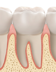 https://cdn.minishteeth.com/wp-content/uploads/2021/08/30022454/periodontal04_img01.jpg