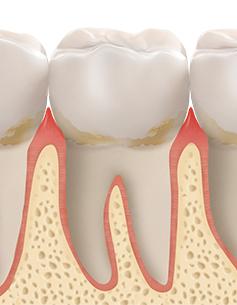 https://cdn.minishteeth.com/wp-content/uploads/2021/08/30022454/periodontal04_img02.jpg