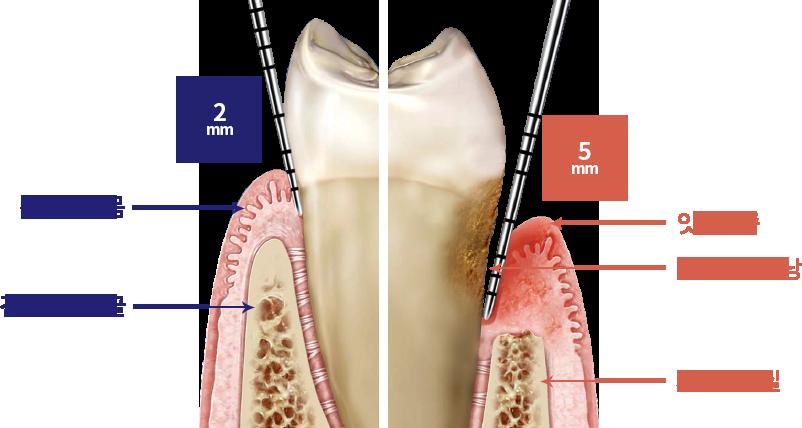 https://cdn.minishteeth.com/wp-content/uploads/2021/08/31115007/periodontal-therapy-2.png