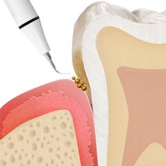 https://cdn.minishteeth.com/wp-content/uploads/2021/08/31120611/periodontal05_img01-1.jpg