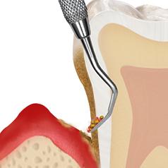 https://cdn.minishteeth.com/wp-content/uploads/2021/08/31120612/periodontal05_img03-1.jpg