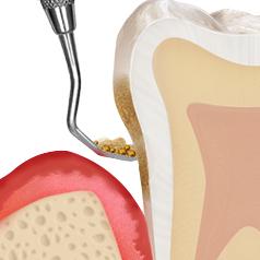 https://cdn.minishteeth.com/wp-content/uploads/2021/08/31120613/periodontal05_img02-1.jpg