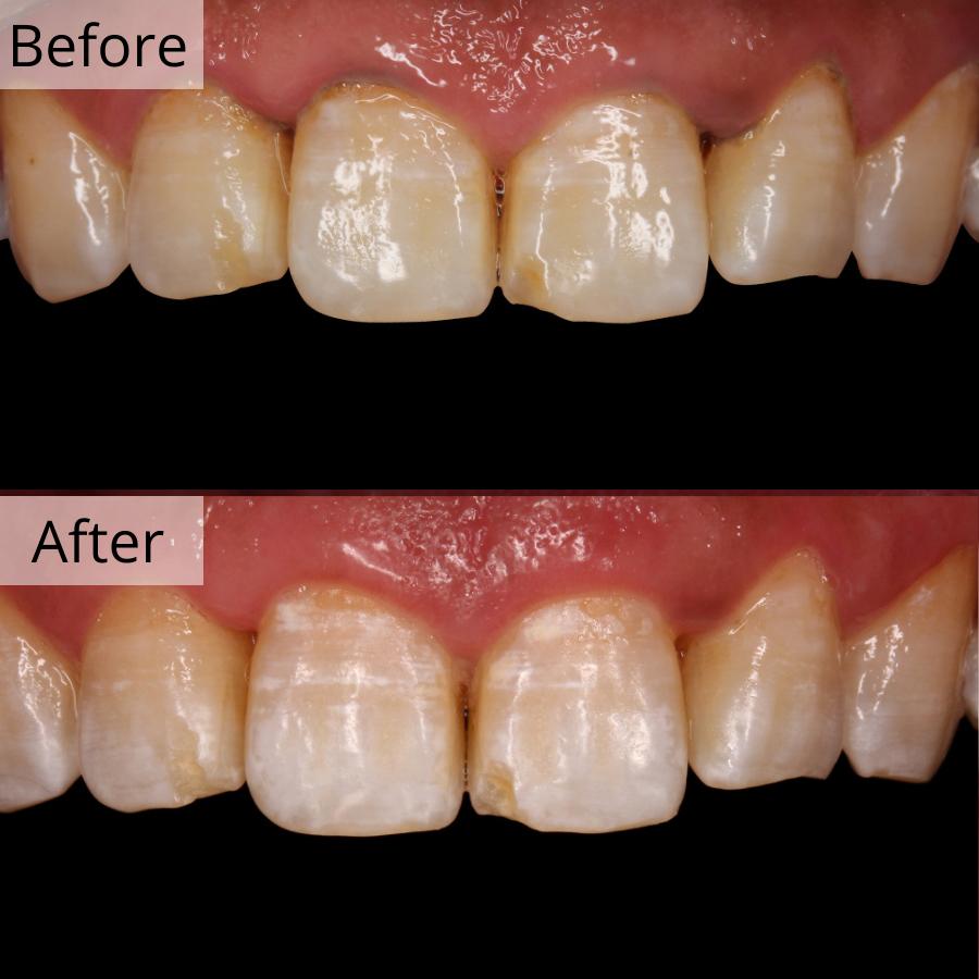 https://cdn.minishteeth.com/wp-content/uploads/2021/08/31121306/periodontal-therapy-bna-1.jpg