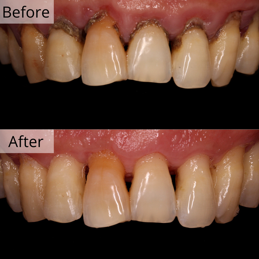 https://cdn.minishteeth.com/wp-content/uploads/2021/08/31121309/periodontal-therapy-bna-2.jpg