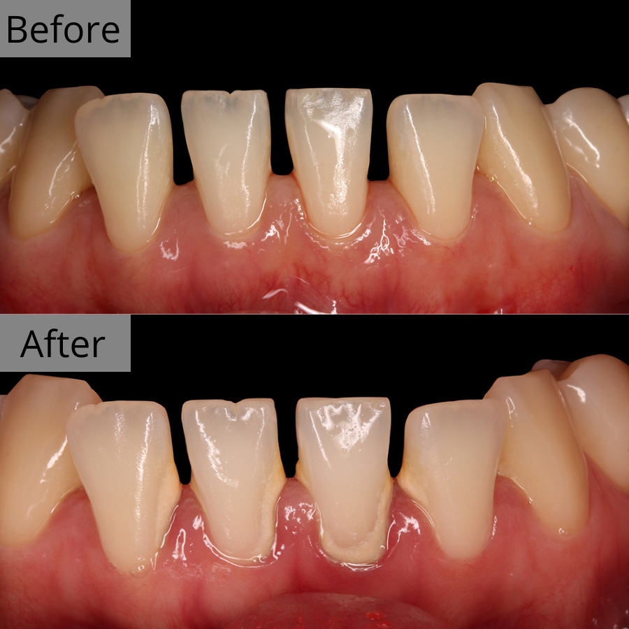 https://cdn.minishteeth.com/wp-content/uploads/2021/08/31121312/periodontal-therapy-bna-3.jpg