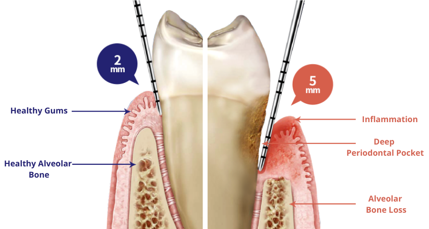 https://cdn.minishteeth.com/wp-content/uploads/2021/09/01055426/periodontal-therapy-causes.png