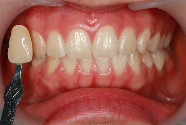 https://cdn.minishteeth.com/wp-content/uploads/2021/09/01112144/tooth-whitening-vital-bleaching-1.jpg