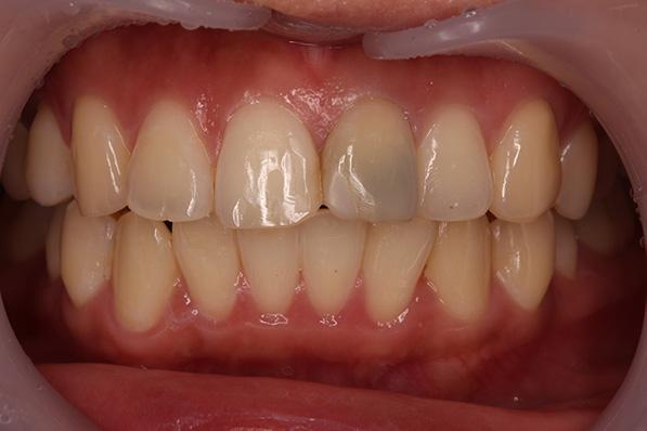 https://cdn.minishteeth.com/wp-content/uploads/2021/09/01112146/tooth-whitening-non-vital-bleaching.jpg