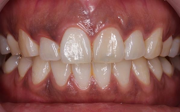 https://cdn.minishteeth.com/wp-content/uploads/2021/09/01114400/tooth-whitening-gum-bleaching.jpg