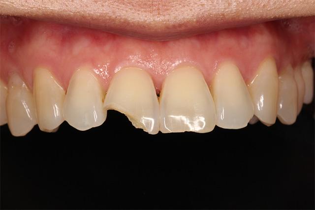 https://cdn.minishteeth.com/wp-content/uploads/2021/09/01120909/tooth-whitening-causes-internal-trauma.jpg
