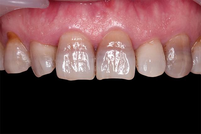 https://cdn.minishteeth.com/wp-content/uploads/2021/09/01120910/tooth-whitening-causes-internal-medicine.jpg