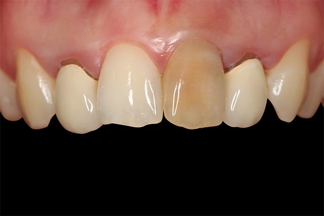 https://cdn.minishteeth.com/wp-content/uploads/2021/09/01120911/tooth-whitening-causes-internal-endodontic.jpg