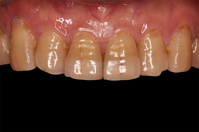 https://cdn.minishteeth.com/wp-content/uploads/2021/09/01120912/tooth-whitening-causes-internal-aging.jpg