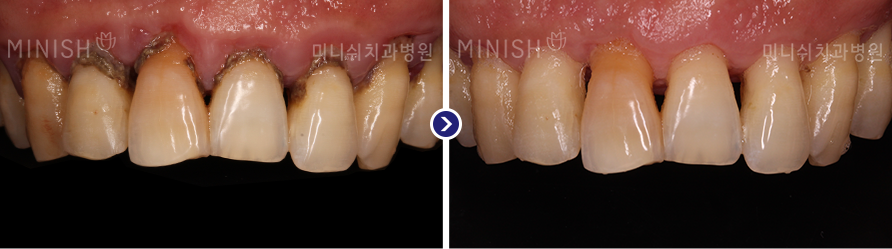 https://cdn.minishteeth.com/wp-content/uploads/2021/09/20014241/periodontal06_slide01.png
