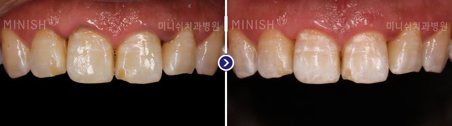 https://cdn.minishteeth.com/wp-content/uploads/2021/09/20014249/periodontal06_slide02.png
