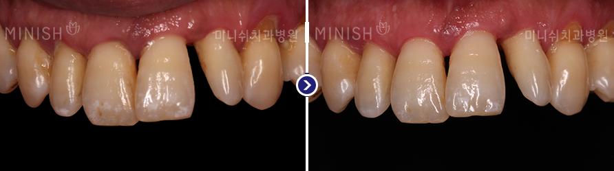 https://cdn.minishteeth.com/wp-content/uploads/2021/09/20014256/periodontal06_slide03.png