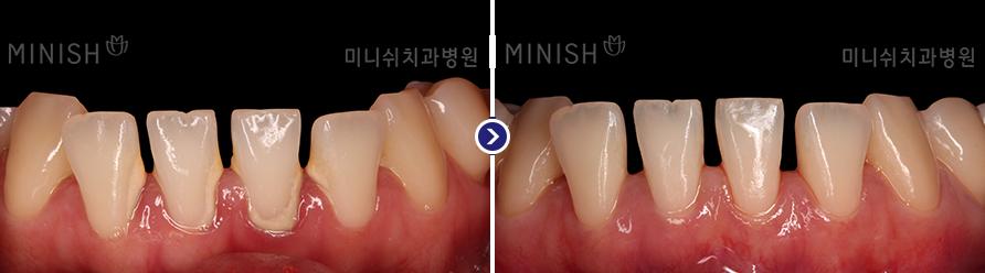 https://cdn.minishteeth.com/wp-content/uploads/2021/09/20014303/periodontal06_slide04.png