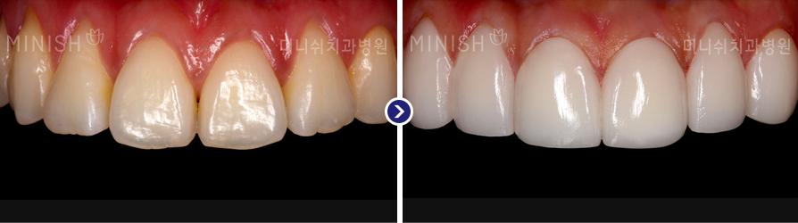 https://cdn.minishteeth.com/wp-content/uploads/2021/09/20022003/orthodontics_img01.jpg