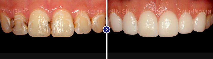 https://cdn.minishteeth.com/wp-content/uploads/2021/09/20022005/orthodontics_img02.jpg