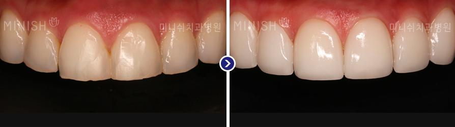 https://cdn.minishteeth.com/wp-content/uploads/2021/09/20022007/orthodontics_img03.jpg