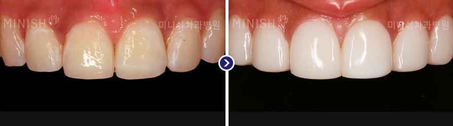 https://cdn.minishteeth.com/wp-content/uploads/2021/09/20022009/orthodontics_img04.jpg