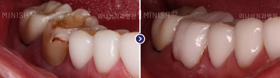 https://cdn.minishteeth.com/wp-content/uploads/2021/09/20135534/minish-types-molar-4.png